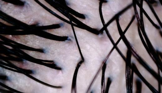白髪染めで頭皮がピリピリ沁みる、大量のフケは危険なサイン【髪や頭皮のトラブル】
